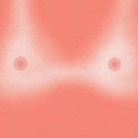 Esibizionismo estivo: i corpi bruciacchiati dal sole di Burrnd